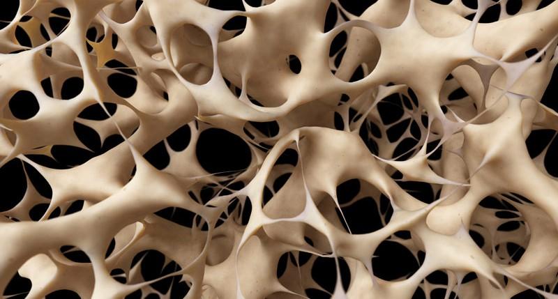 Beschreibung Aktionstag Welt-Osteoporosetag