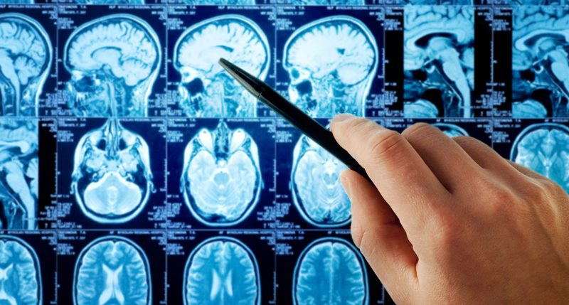 Am 8. Juni ist Welthirntumortag. Weitere Informationen und Hintergründe zum Aktionstag des Hirntumors bekannt auch als Welthirntumortag findest Du hier.